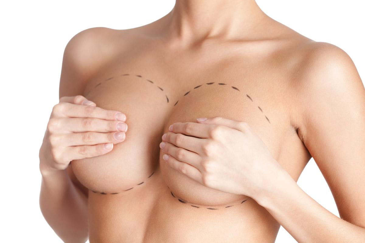 Сколько стоит операция увеличение груди 16 фотография