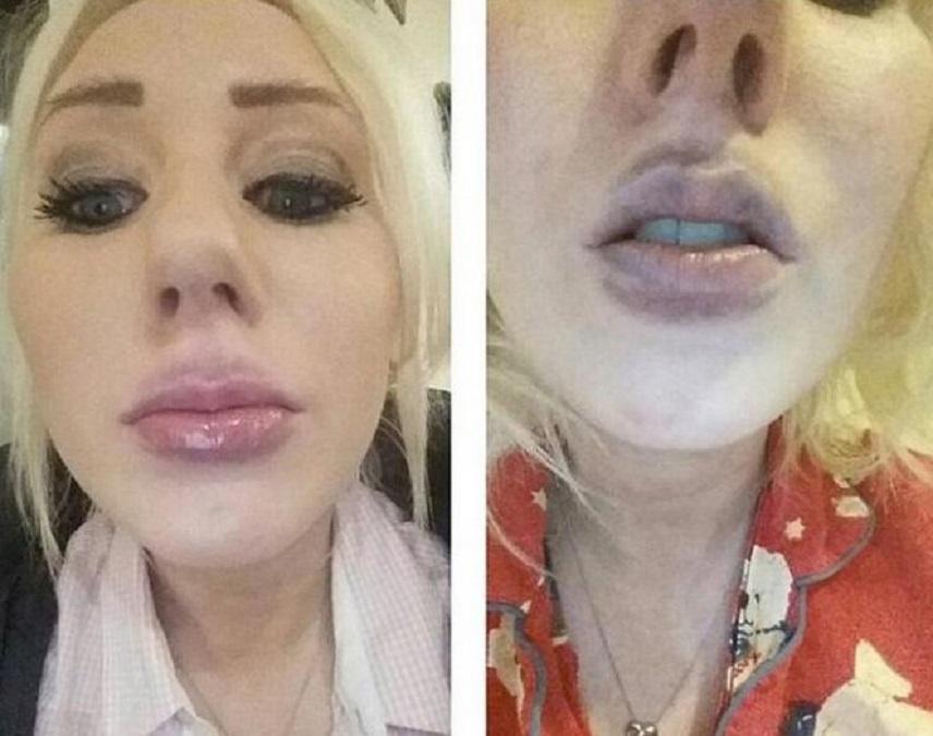 Как убрать синяк с губ после увеличения