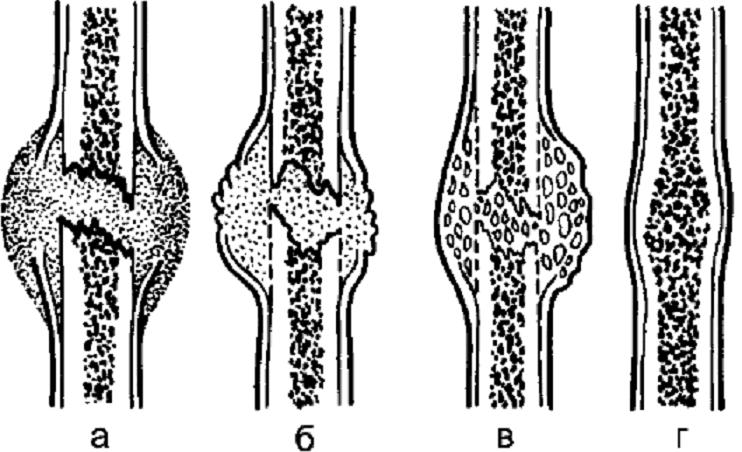 Мозоль костная