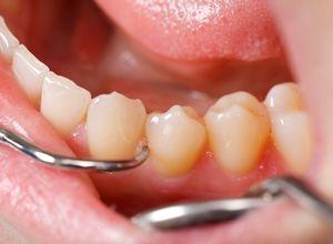 Здоровая полость рта: как удалить зубные камни 32