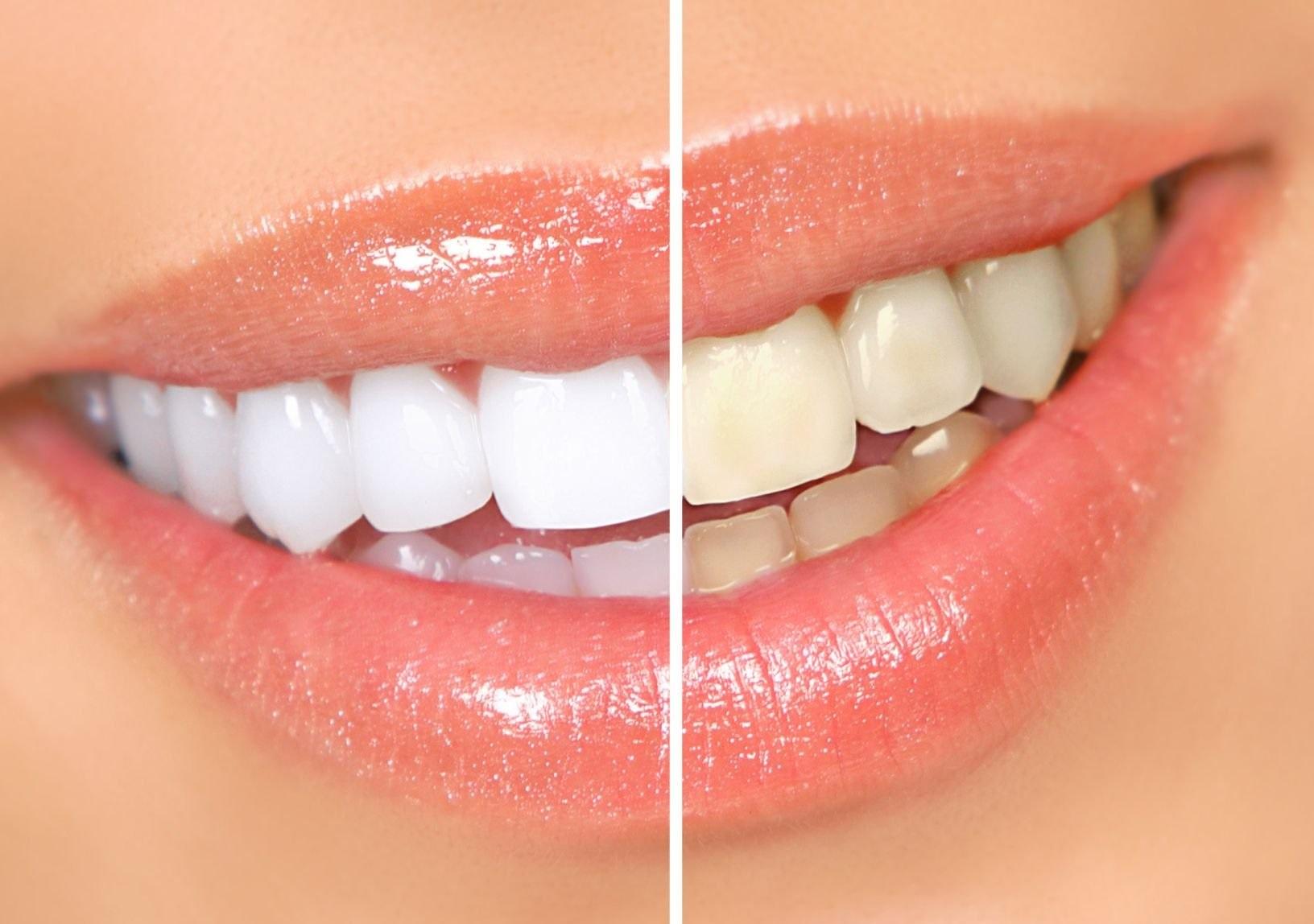 отбеливание зубов в кресле яйце отзывы